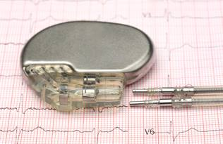 Artificial Cardiac Pacemaker Market 2020- Global Industry Analysis, By Key Players, Segmentation, Trends and Forecast D'ici 2026